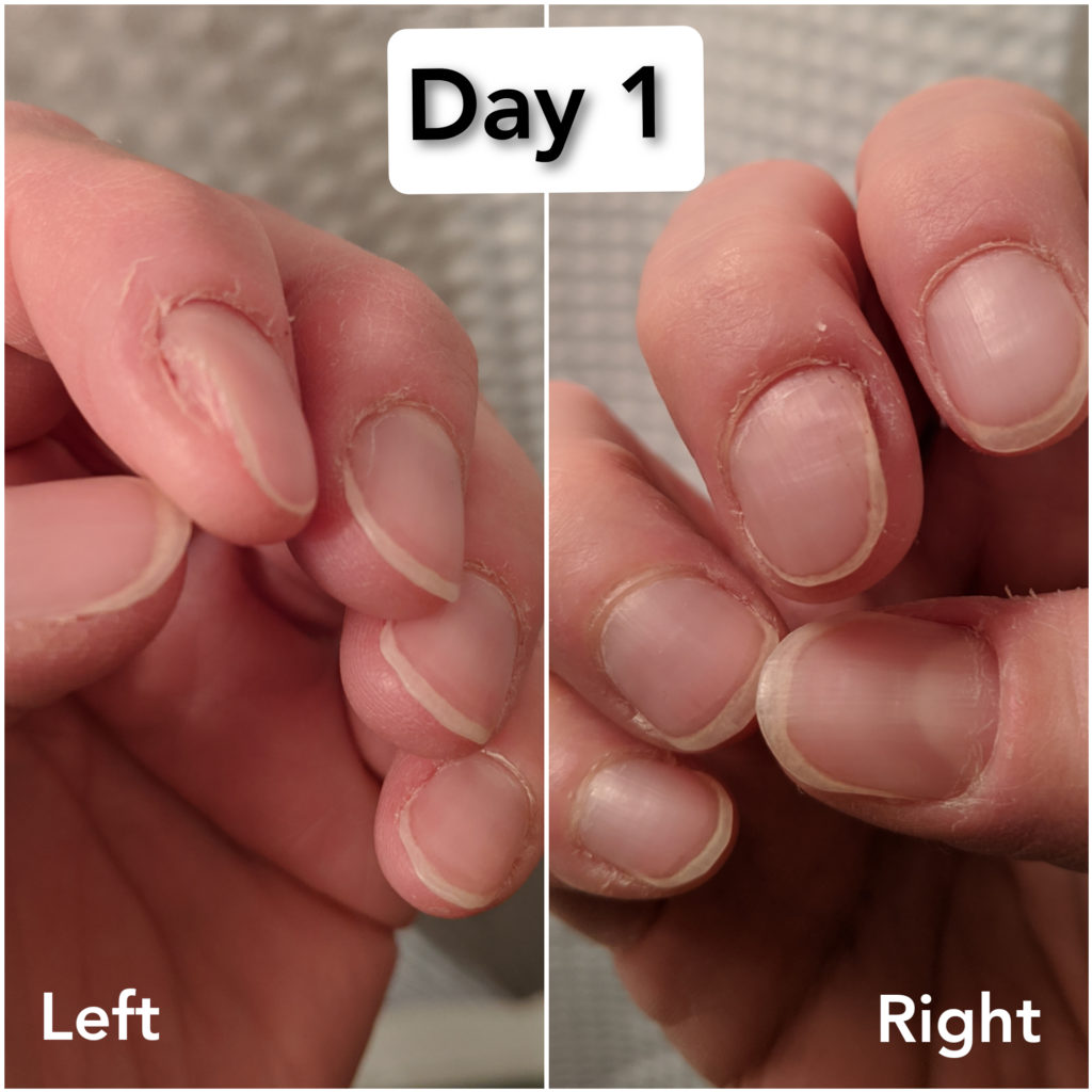 Image of Jenni's nails day 1. Nails are bitten, misshapen, and cuticles are dry, rough, and torn.